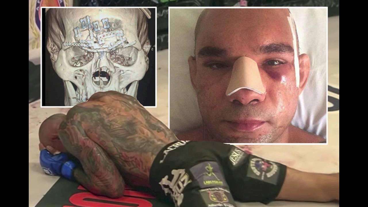 Cyborg Santos broken skull